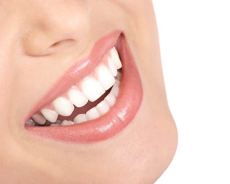 Facettes-dentaire-Centre-dentaire-Stéphane-Girard-à-St-Jérôme