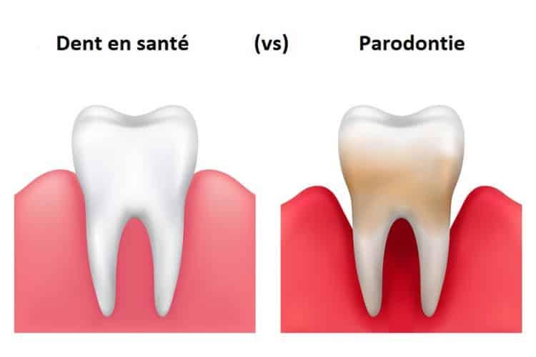 Parodontie - Centre dentaire STéphane Girard à St-Jérôme